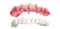 Зъбни импланти